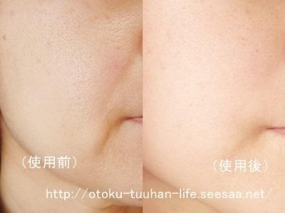 プラセンタ美容液 使用前使用後写真.jpg